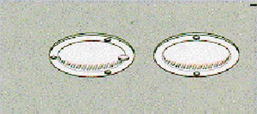 Accessory Lens